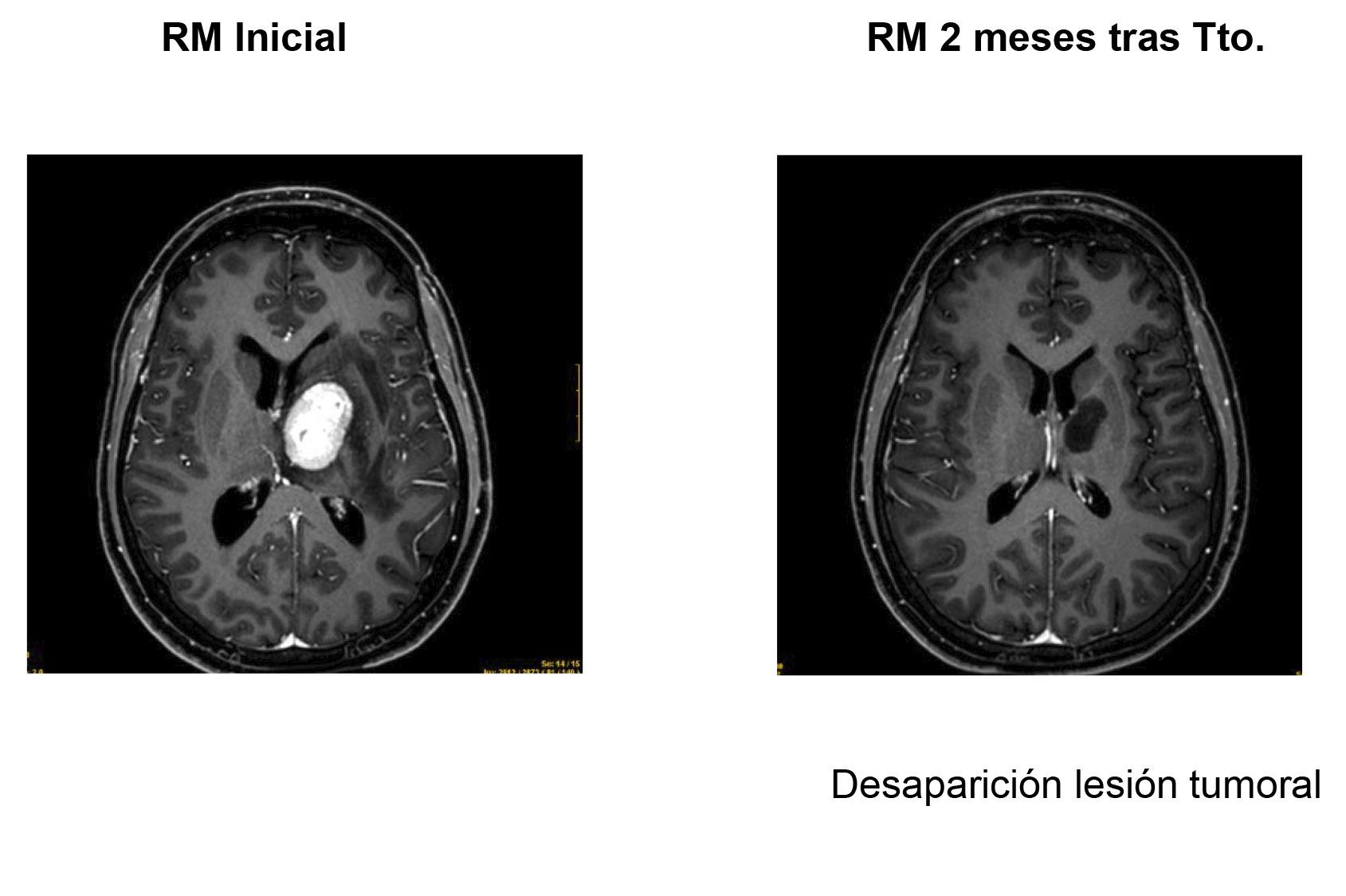 Valdecilla comienza a aplicar tratamientos de radiocirugía en tumores y anormalidades funcionales cerebrales
